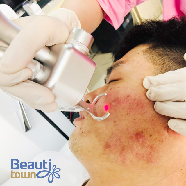 RF Tube Co2 Fractional Laser Skin Resurfacing Cost